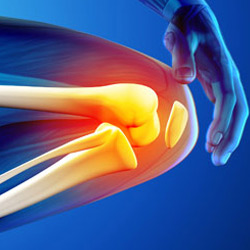 Arthritis & Joint Pain